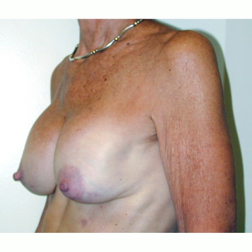 Breast Augmentation 12 Before Photo