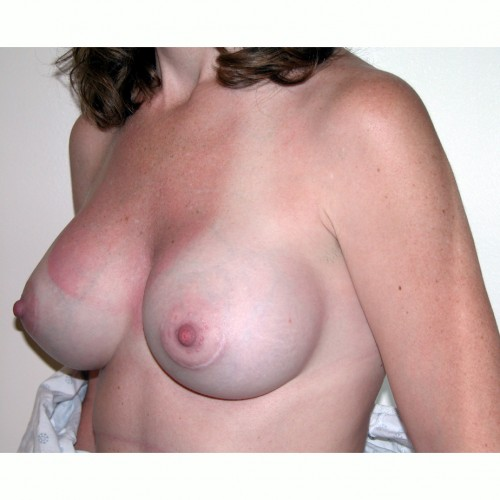 Breast Augmentation 13 After Photo