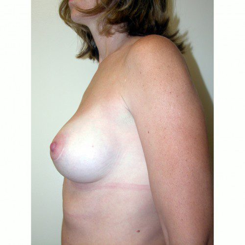 Breast Augmentation 13 Before Photo