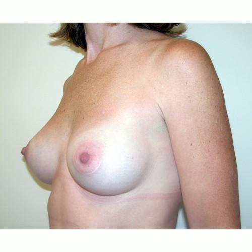 Breast Augmentation 13 Before Photo
