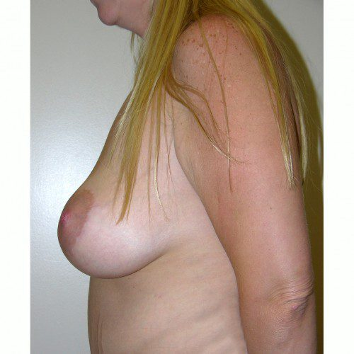 Breast Augmentation 14 After Photo