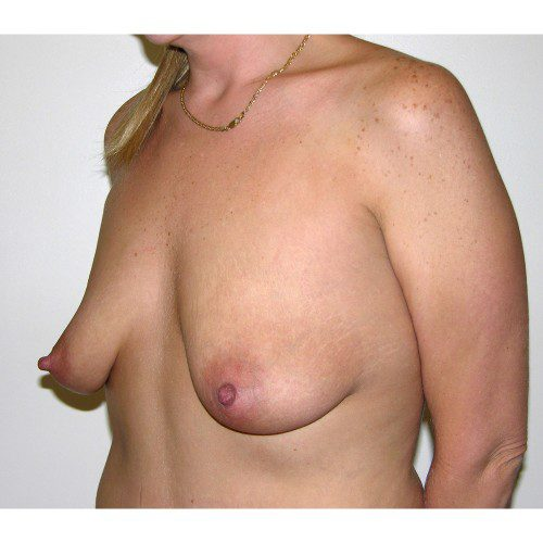 Breast Augmentation 14 Before Photo