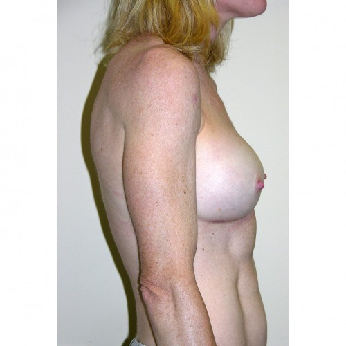 Breast Augmentation 30 After Photo