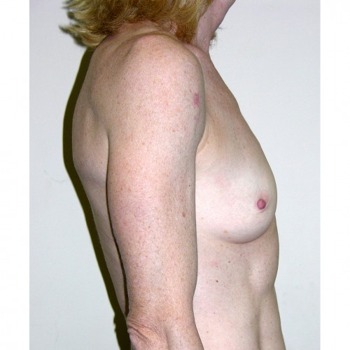 Breast Augmentation 30 Before Photo