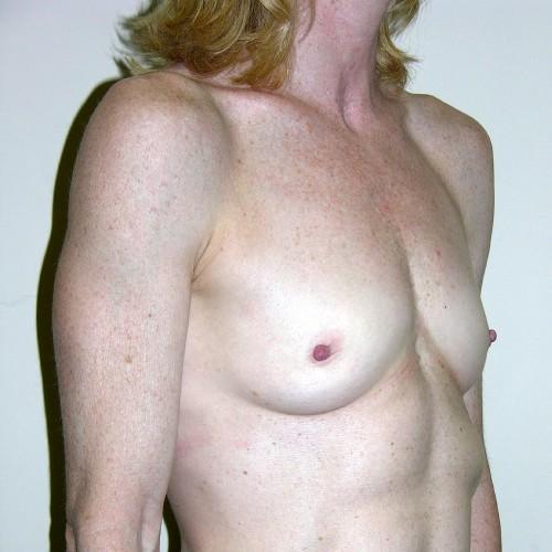 Breast Augmentation 30 Before Photo
