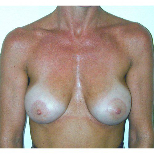 Breast Augmentation 16 After Photo
