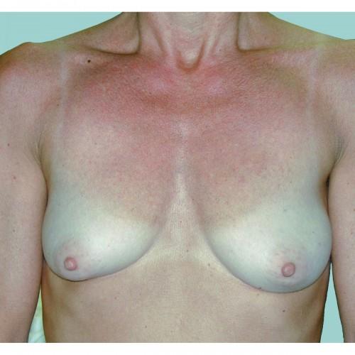 Breast Augmentation 16 Before Photo