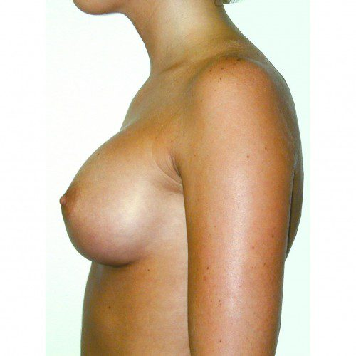 Breast Augmentation 17 After Photo