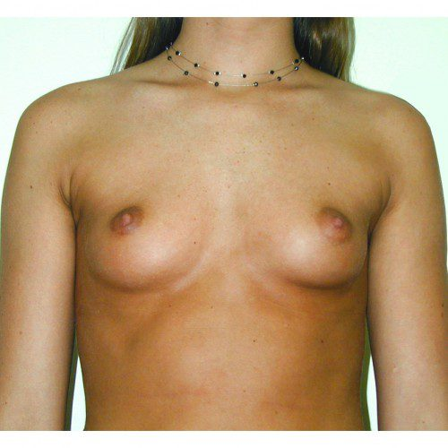 Breast Augmentation 17 Before Photo
