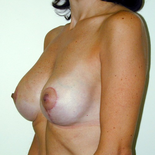 Breast Augmentation 18 After Photo