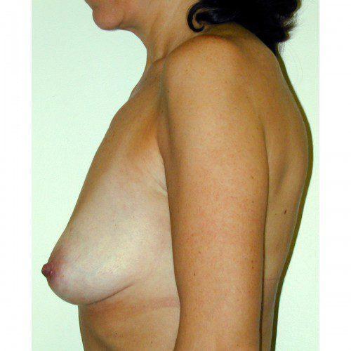Breast Augmentation 18 Before Photo