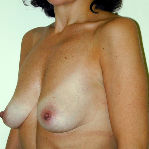 Breast Augmentation 18 Before Photo