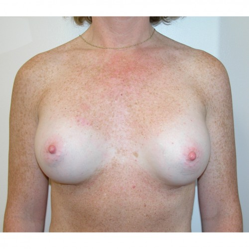 Breast Augmentation 19 After Photo