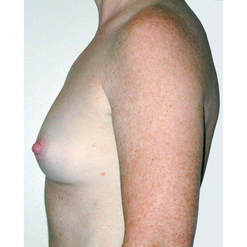 Breast Augmentation 19 Before Photo