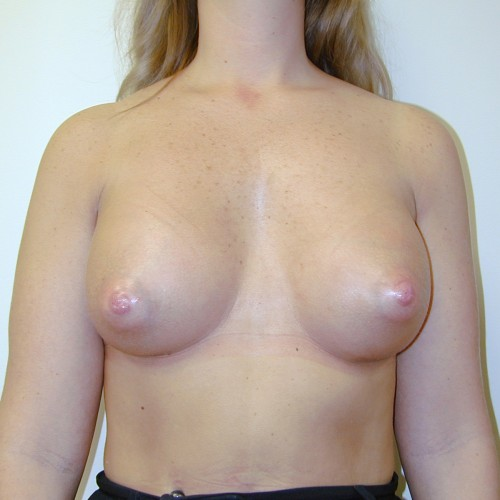 Breast Augmentation 21 After Photo