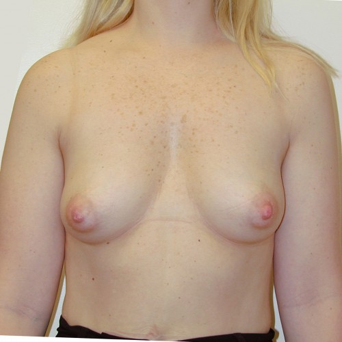Breast Augmentation 21 Before Photo