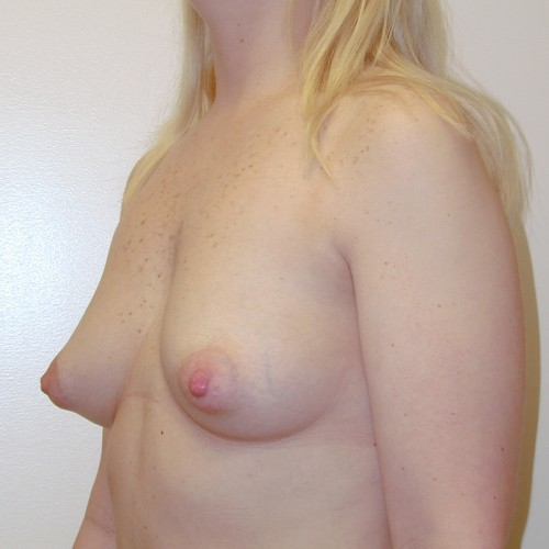 Breast Augmentation 21 Before Photo