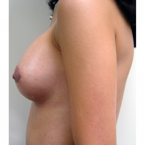 Breast Augmentation 22 After Photo