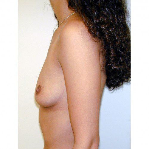 Breast Augmentation 22 Before Photo