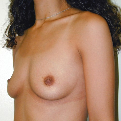 Breast Augmentation 22 Before Photo