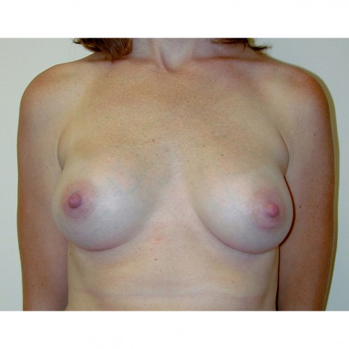 Breast Augmentation 23 After Photo