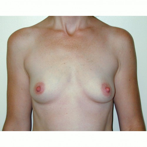 Breast Augmentation 23 Before Photo