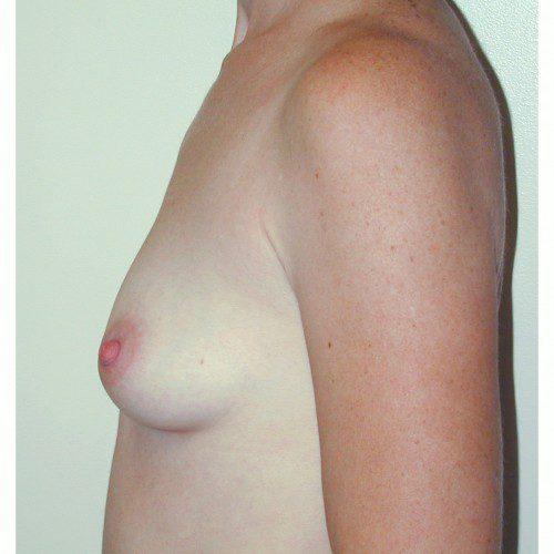 Breast Augmentation 23 Before Photo