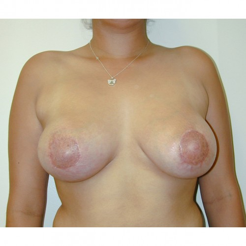 Breast Augmentation 24 After Photo