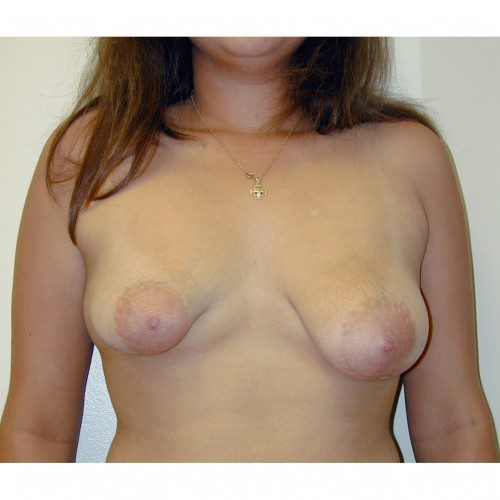 Breast Augmentation 24 Before Photo