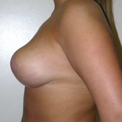 Breast Lift 1 After Photo