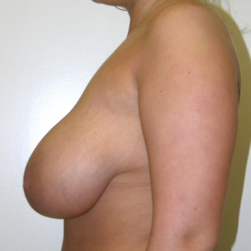 Breast Lift 1 Before Photo