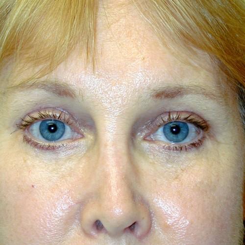 Blepharoplasty 1 After Photo