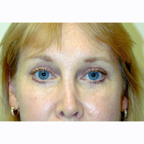 BrowLift 11 After Photo