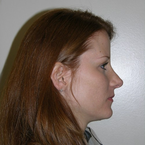 Rhinoplasty 0 After Photo