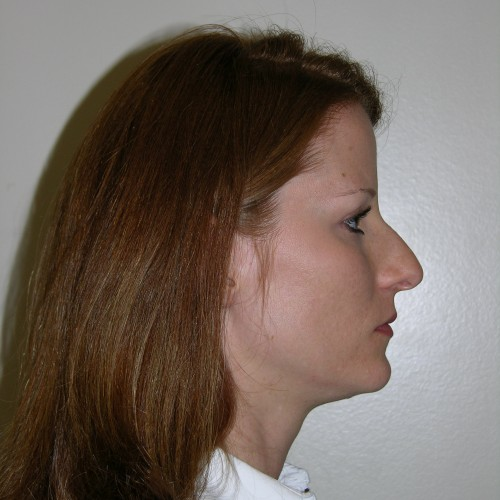 Rhinoplasty 0 Before Photo