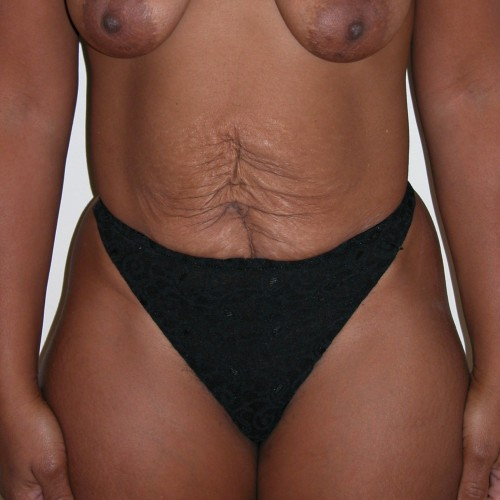 Abdominoplasty 3 Before Photo