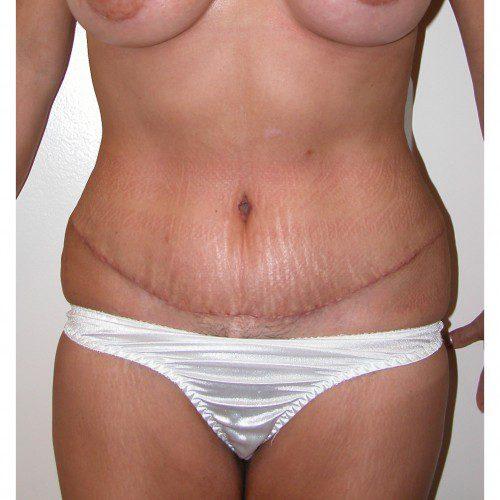 Abdominoplasty 2 After Photo