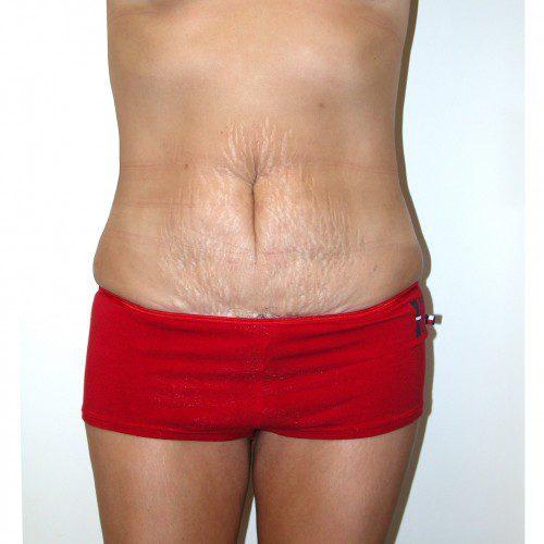 Abdominoplasty 2 Before Photo