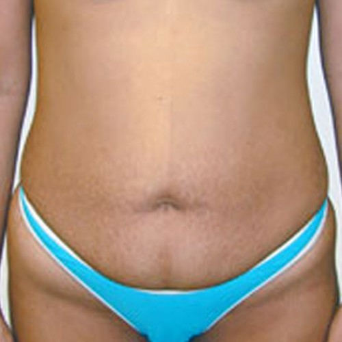 Abdominoplasty 1 Before Photo