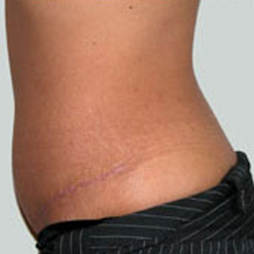 Abdominoplasty 1 After Photo