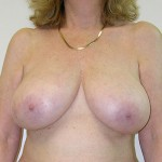 Breast Reduction 02 Before Photo - 2