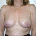 Breast Reduction 02 After Photo - 2
