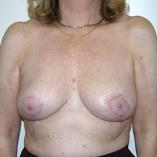 Breast Reduction 02 After Photo