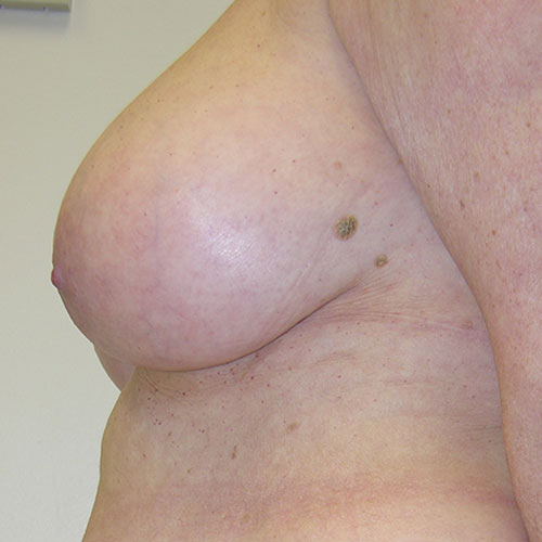 Breast Reduction 02 Before Photo