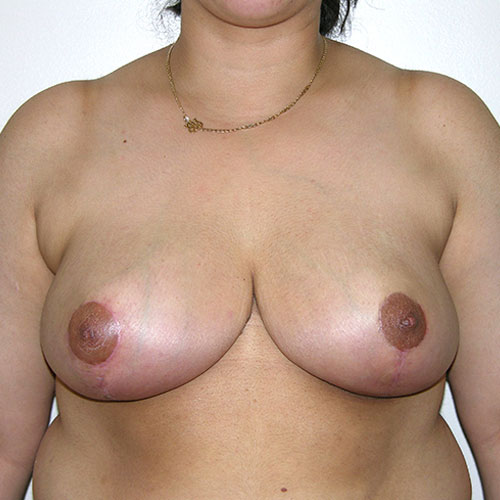 Breast Reduction 03 After Photo