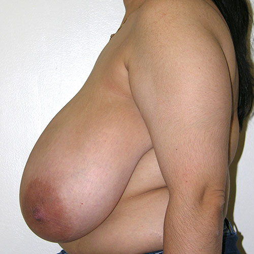 Breast Reduction 03 Before Photo