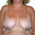 Breast Reduction 04 Before Photo - 4