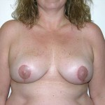 Breast Reduction 04 After Photo - 4