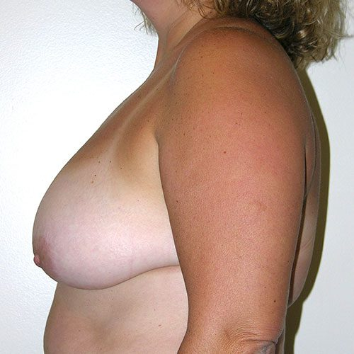 Breast Reduction 04 Before Photo