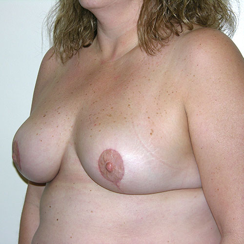 Breast Reduction 04 After Photo